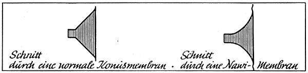 Nawi-Membran